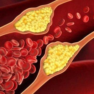 Kolesterolü düşüren 10 besin!