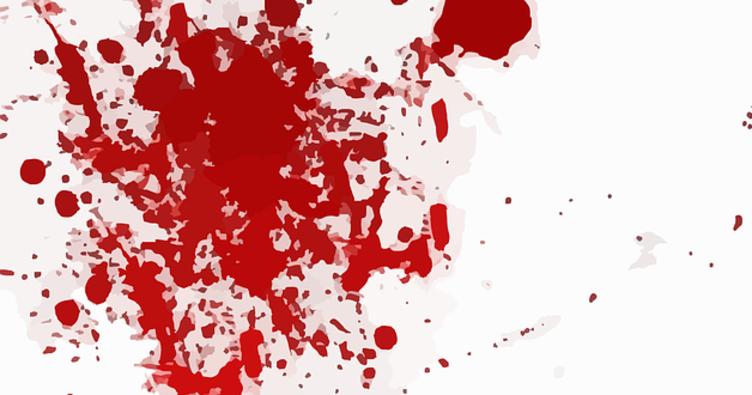 RÜYADA KAN GÖRMEK - Rüyada kan kusmak, kan aldırmak ve kan kusmak neye işarettir?