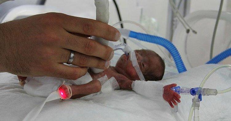 514 gram bebeğe hayat operasyonu