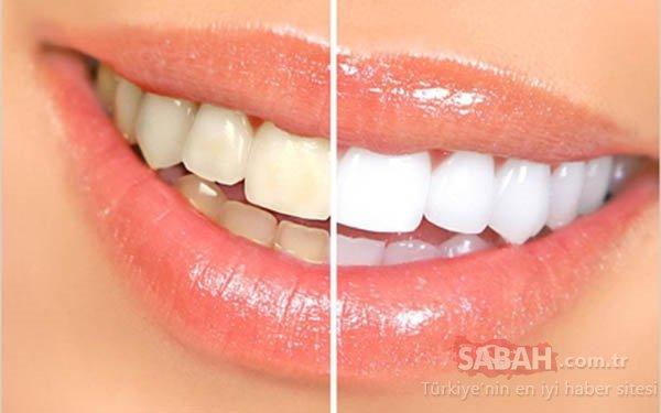 Evde diş beyazlatma yöntemleri neler? İşte o mucize teknikler…