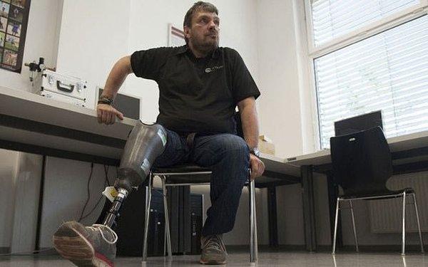 Dünyanın ilk 'hisseden protez' bacağı