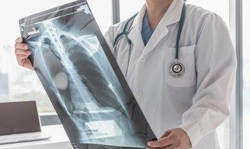 Akciğer kanseri kadınlarda daha sık görülüyor