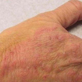 Mantar hastalığı belirtileri nelerdir? Mantar neden olur, nasıl geçer?