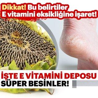 Topuklardaki çatlak E vitamini eksikliği belirtileri arasında...  İşte E vitamini deposu besinler ve faydaları...
