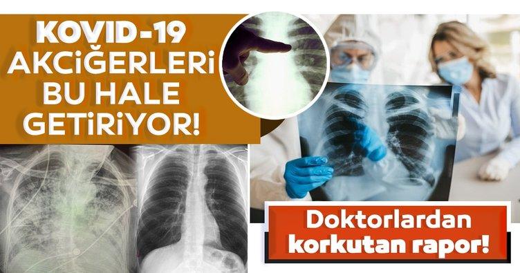 Doktorlardan korkutan rapor! Koronavirüs geçirmiş hastanın akciğeri…