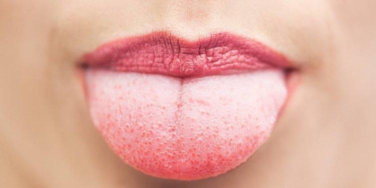 Kıllı dil nedir ve belirtileri nelerdir