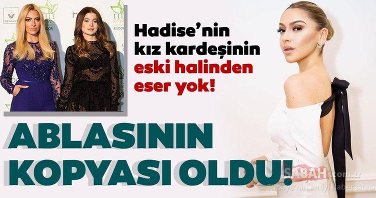 Şarkıcı Hadise'nin kız kardeşi Derya Açıkgöz'ün eski halinden eser yok! Hadise'nin kopyası gibi oldu!