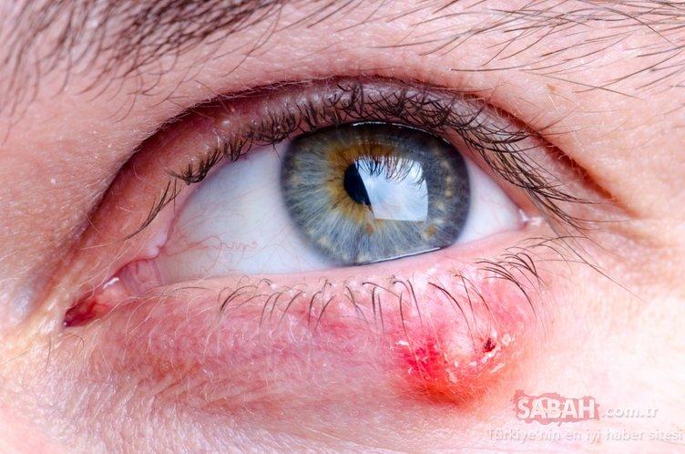 Gözlerdeki 6 sakıncalı maddeye dikkat!