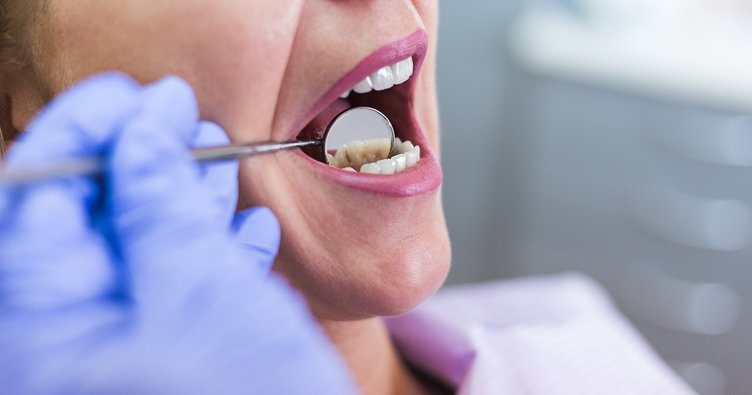 Diş araları nasıl temizlenir? Diş temizleme ve beyazlatma önerileri