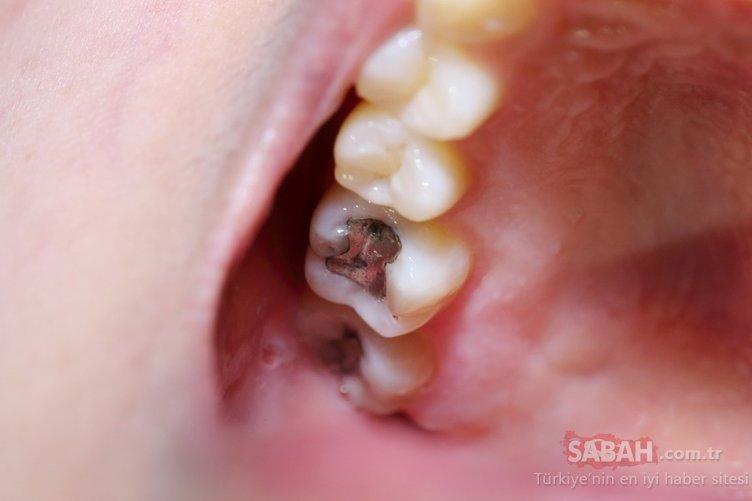 Çürük dişleri tedavi ettiği ortaya çıktı! Sağlıklı dişler için uygulanan bu yöntem şaşırtıyor...