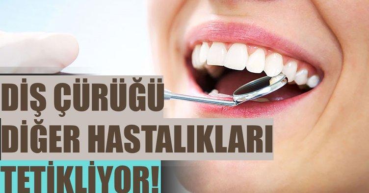 Diş çürüğü diğer hastalıkları tetikliyor