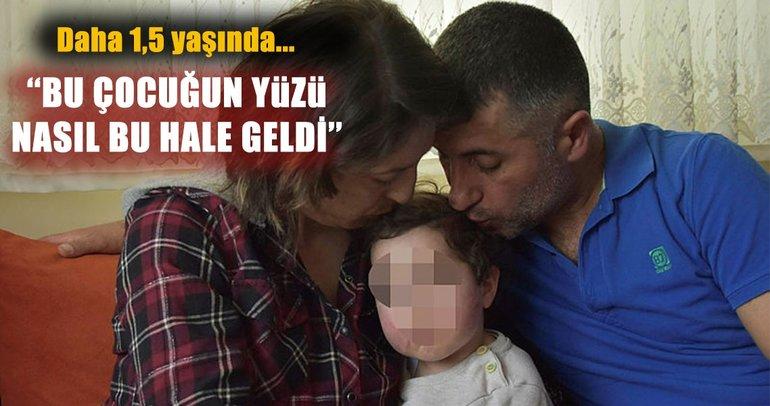 Kreşte skandal: 1,5 yaşındaki kız çocuğuna dayak iddiası!