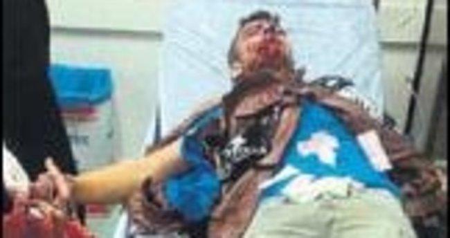Polise atarken elinde patladı