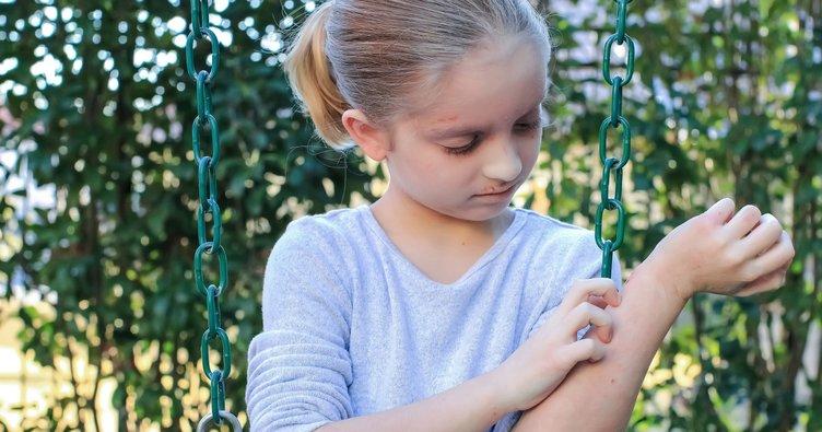 Dünyada her 5 çocuktan biri egzamayla mücadele ediyor