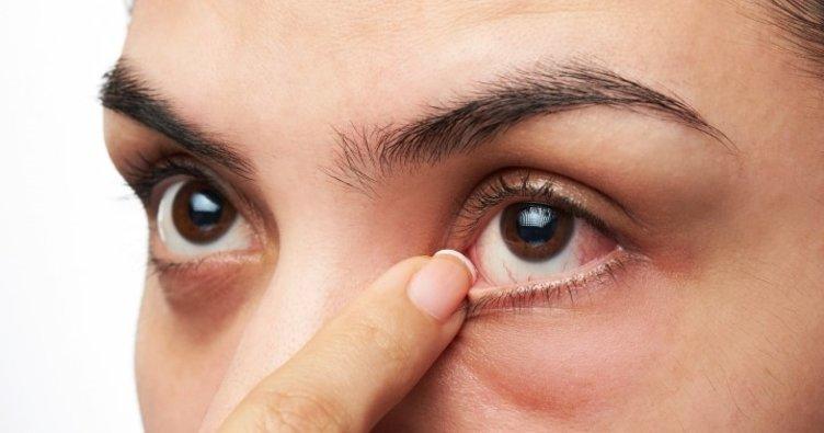 Göz alerjisini hafife almayın