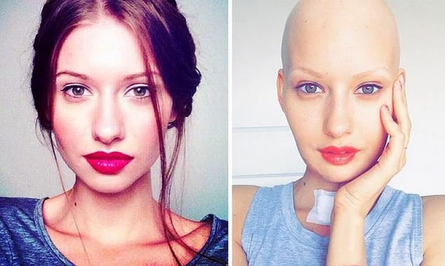Hamileyken kanser olduğunu öğrendi