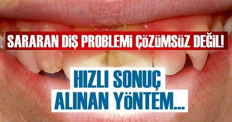 Sararan diş problemi çözümsüz değil