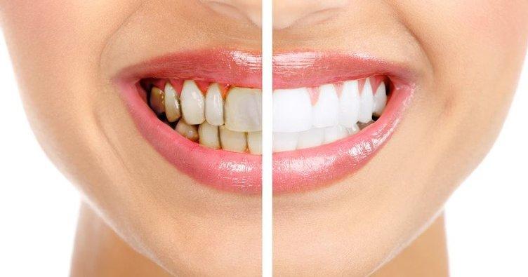 Dişleriniz için bir de bu yöntemi deneyin...