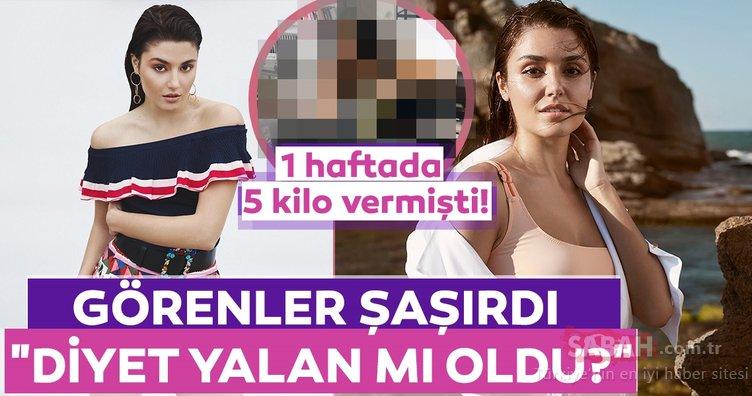 Hande Erçel'in paylaşımını görenler şoke oldu! 1 haftada 5 kilo vermişti!