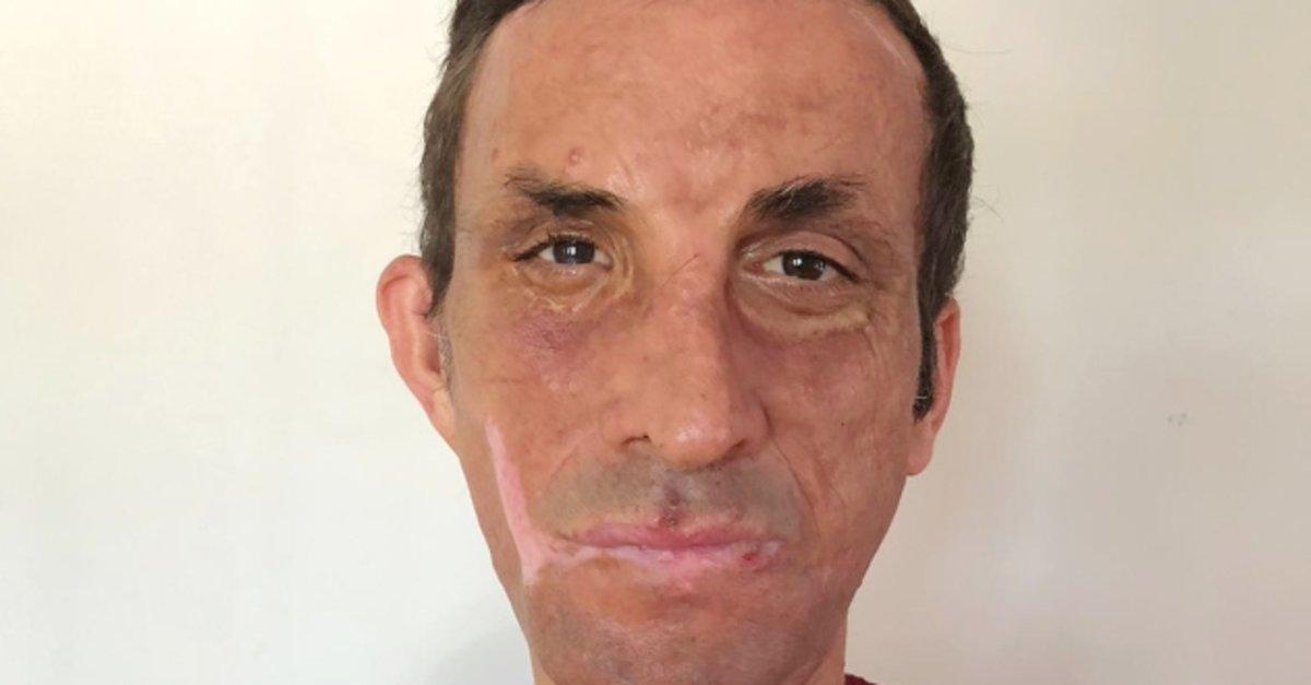 İlk yüz nakilli Uğur Acar: Koronavirüs nedeniyle 3 ay evden çıkmadım
