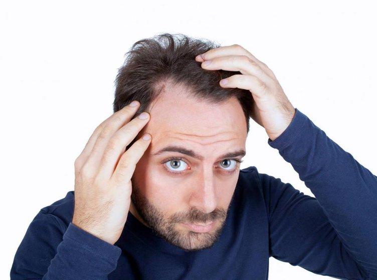 Çağın hastalığı saçları bir gecede dökebiliyor!