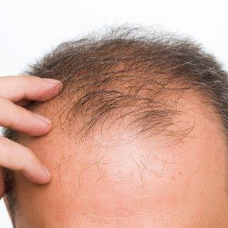 Stres erkeklerde saçları döküyor