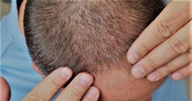 Saç kaybı için uygulanan lazer tedavisinin avantajları nelerdir?