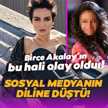 Birce Akalay'ın bu hali sosyal medyanın dilinde!