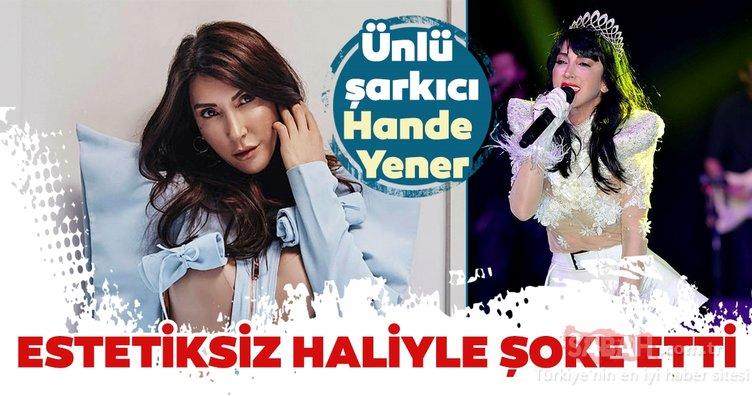 Hande Yener'in estetiksiz hali ortaya çıktı! İşte Hande Yener ve diğer ünlü isimlerin estetiksiz halleri…