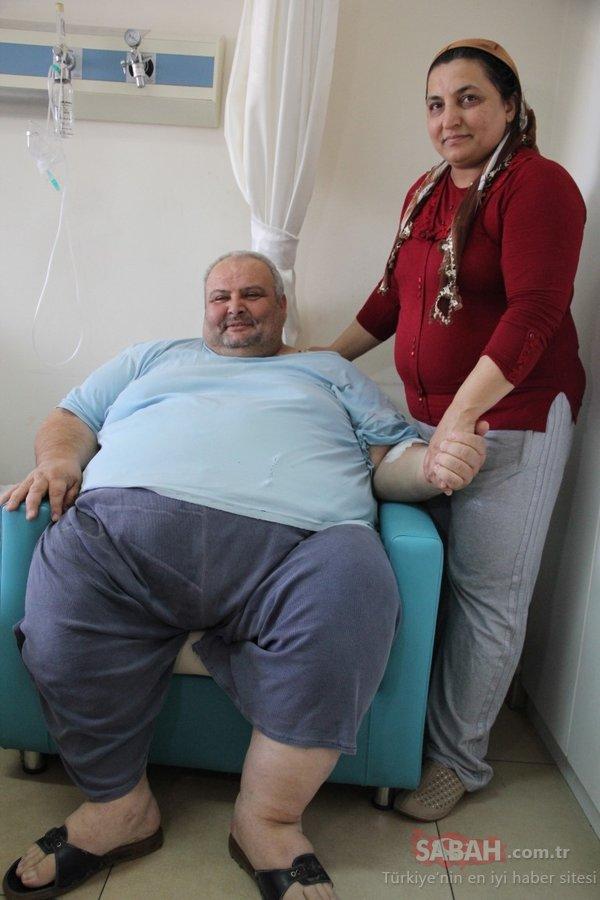 Değişimi inanılmaz oldu! 152 kilo verdi ayağa kalkar kalmaz yaptığı ilk iş bakın ne oldu!