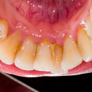 Diş beyazlatmada bitkisel çözümler!