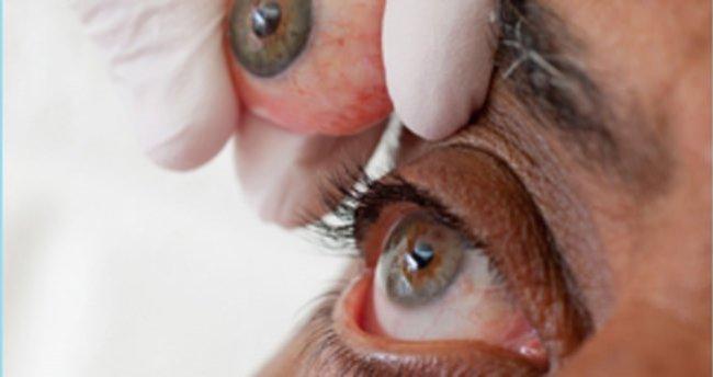 Göz protezi kimlere uygulanır? Hareketli göz protezi ne demektir?