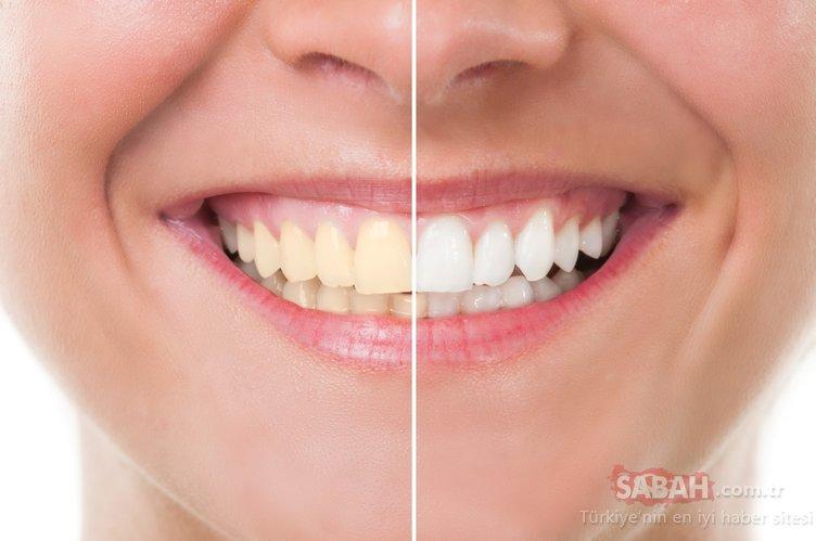 Etkisine inanamayacaksınız! Diş çürüğünü ortadan kaldırıyor