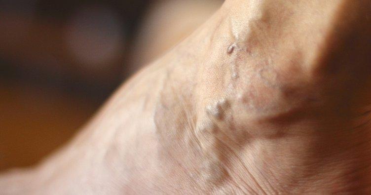 Varis aslında korkulması gerekmeyen bir hastalıktır