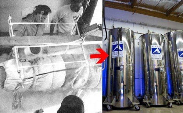 51 yıl önce donduruldu! Hala canlanmayı bekliyor