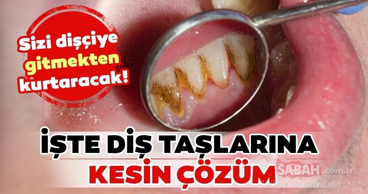 Diş taşları nasıl geçer? İşte diş taşlarından kurtulmanın en kolay yolu