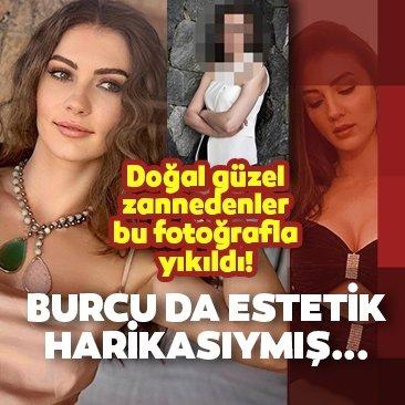 Burcu Özberk de estetik harikası çıktı!