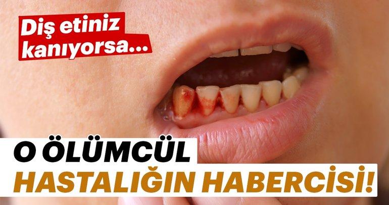 Diş etiniz kanıyorsa dikkat! O hastalığın habercisi...