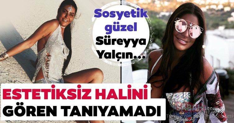 Süreyya Yalçın'ın estetiksiz hali şoke etti! Süreyya Yalçın'ı hiç böyle görmediniz...