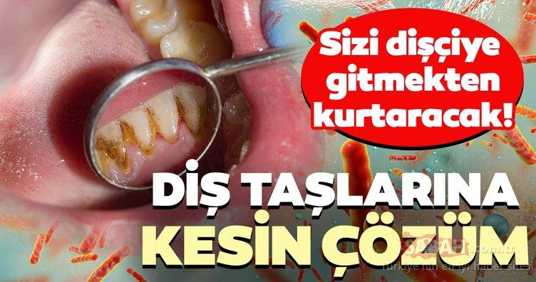 Diş taşlarından kurtulmanın kesin çözümü!