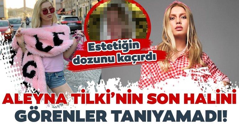 Aleyna Tilki'nin son halini görenler tanıyamadı! Estetiğin dozunu kaçırdı