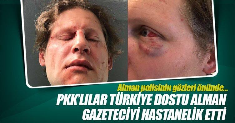 PKK'lılar Türkiye dostu Alman gazeteciyi hastanelik etti